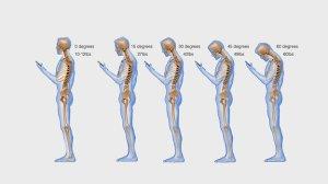 neck-smarthphones_wide-5982b02692147f11641577107594663db25a44cf-s4-c85